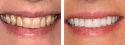 Smile Gallery - Patient of Dr. Patel